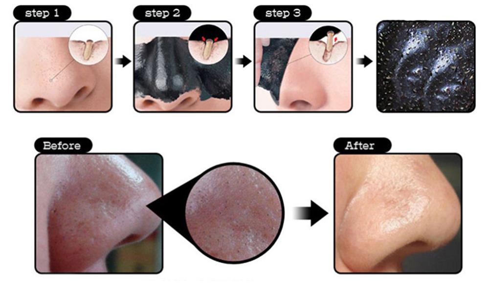 Pleťová maska Pilaten na černé tečky